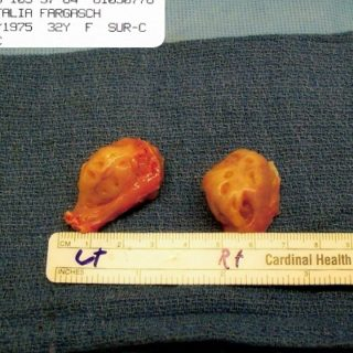 my excised tonsils